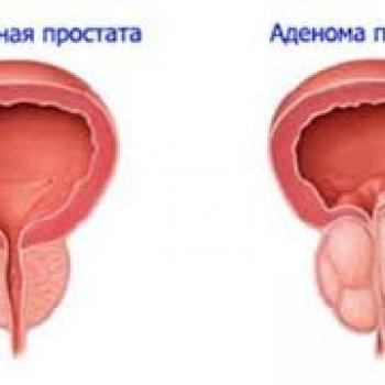Лечение аденомы простаты живой водой